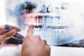 3D Dental Tomographie