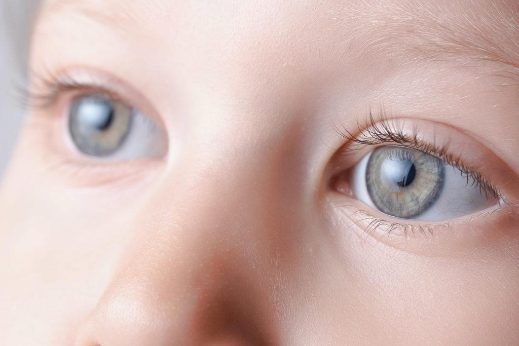 medworld-clinic-Cataract