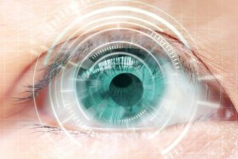 Laser And Intraocular Lens
