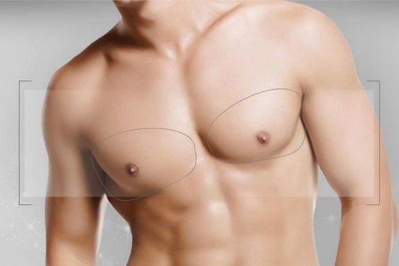 Мужская Маммопластика-Гинекомастия