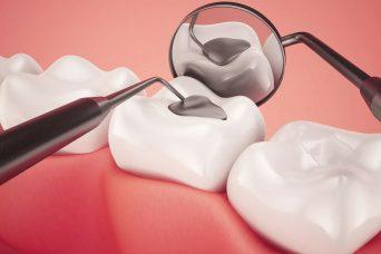 Zahnfüllungen & Wurzelbehandlung