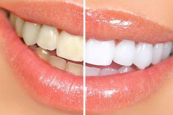 Laser-Zahnaufhellung
