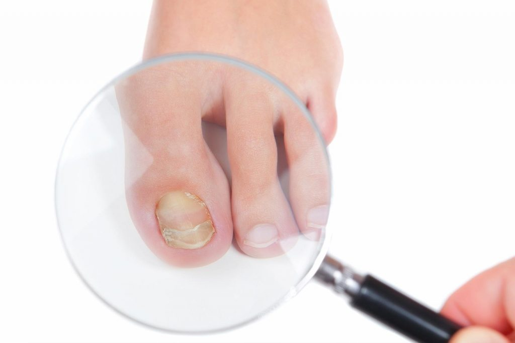 Nail Fungus - Medworld Clinic