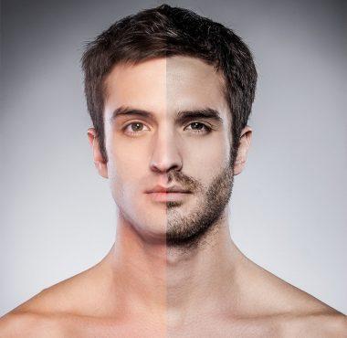Hair & Bearc Transplant - Medworld Clinic