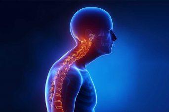 Wie kann die zervikale Kyphose behandelt werden?