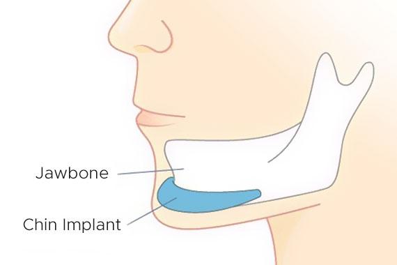 Подбородочные Имплантаты