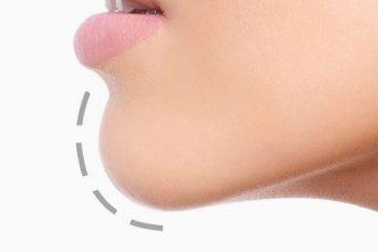 Chin Implants - Chin Augmentation Surgery